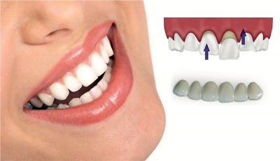 PORCELAIN VENEERS – an elegant way to a perfect smile!